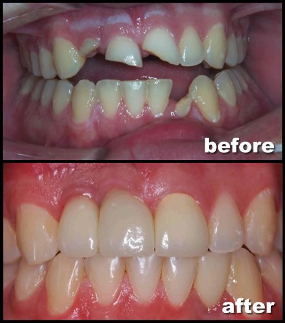 Dental Implant Restoration Feild Family Dentistry