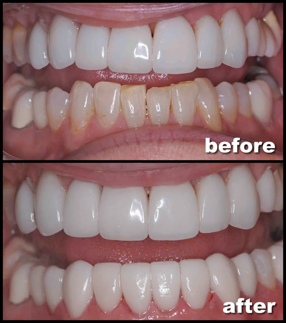 Veneers Transformation | Feild Family Dentistry